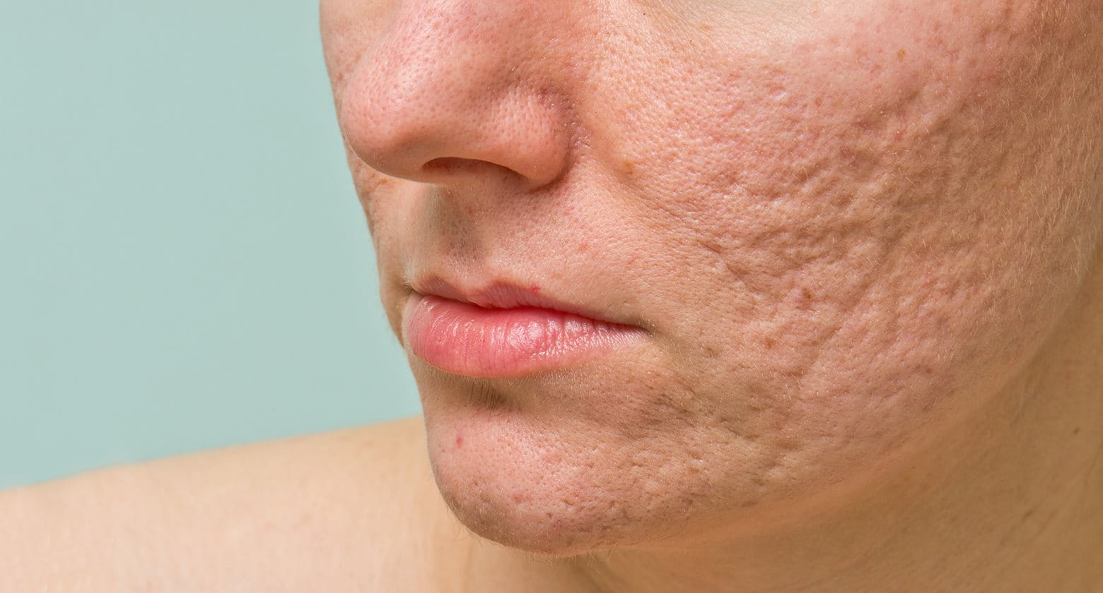 how to take away acne scars