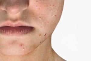 Blemish- prone skin in general | acne