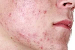 Image Result For Acne Prone Skin Meaning