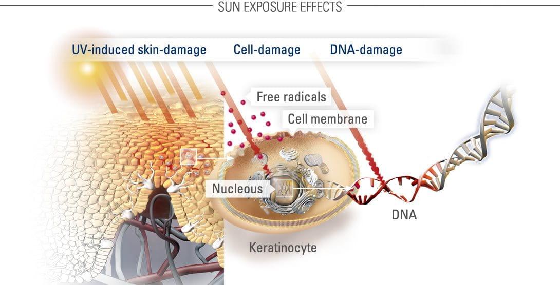 Υπεριώδης ακτινοβολία και βλάβες στο δέρμα
