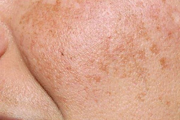 Eucerin: About skin