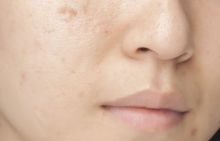 Woman´s face with oily and blemish skin