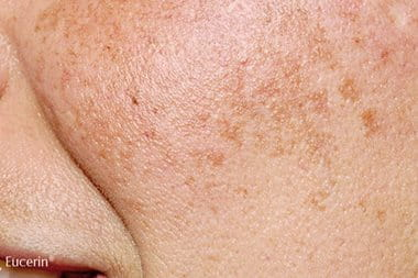 Melasma: melasma on face