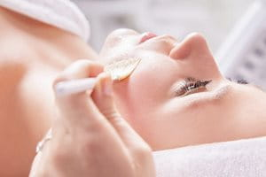 Melasma how to treat: chemical peel