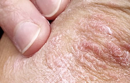 psoriasis – causes, symptoms and solutions | eucerin, Skeleton