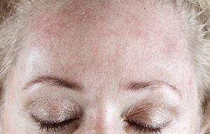 Woman´s forehead looking red and flaky.