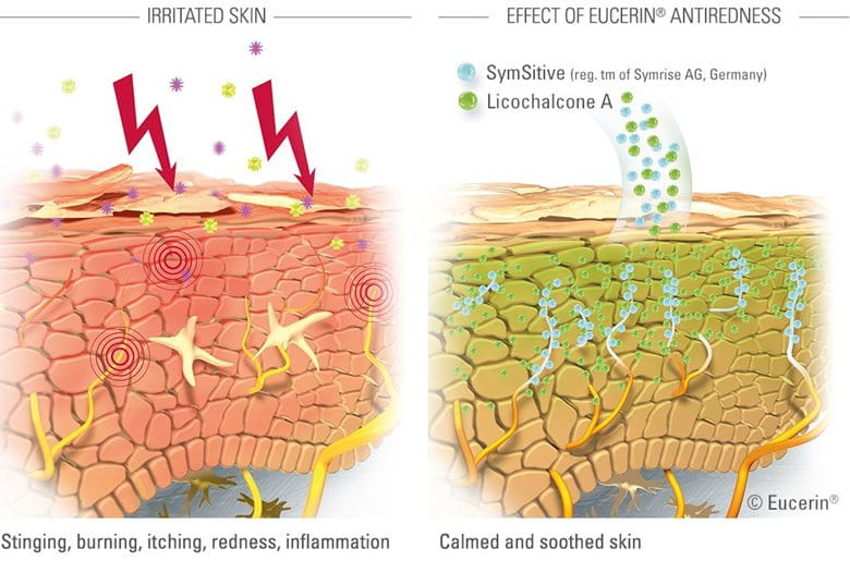 Diagram to illustrate effect of Eucerin AntiREDNESS products.