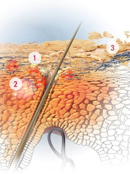 La dermatitis toksikodermiya la eccema neyrodermit