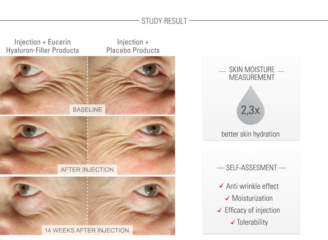 Clinical study shown on elderly women´s faces.