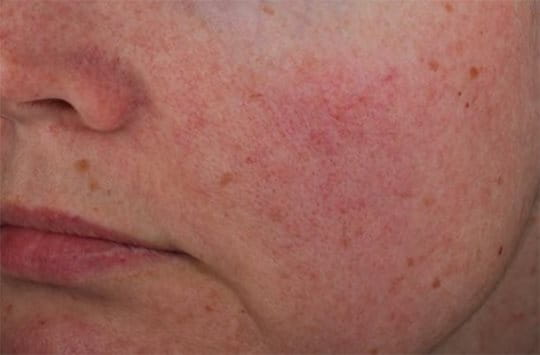Photographs to show in Vivo study results on efficacy of AntiREDNESS Soothing Care