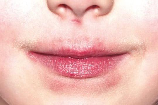 Eucerin: Complete Repair   Acute Lip Balm   Dry Skin