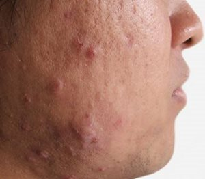 Grades of acne severity image.