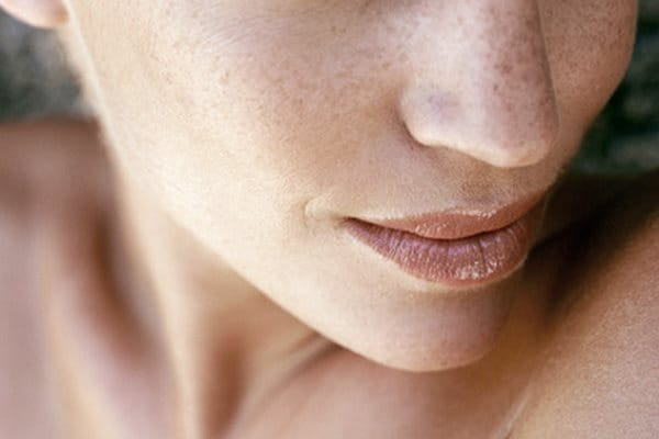Signs of aging: hyperpigmentation