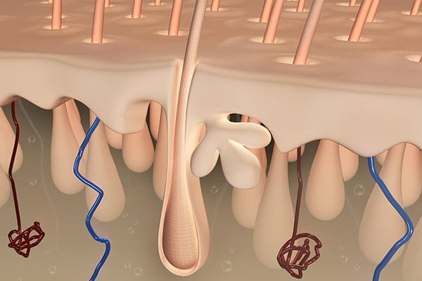 Eczema scalp: lots of entry points for bacteria