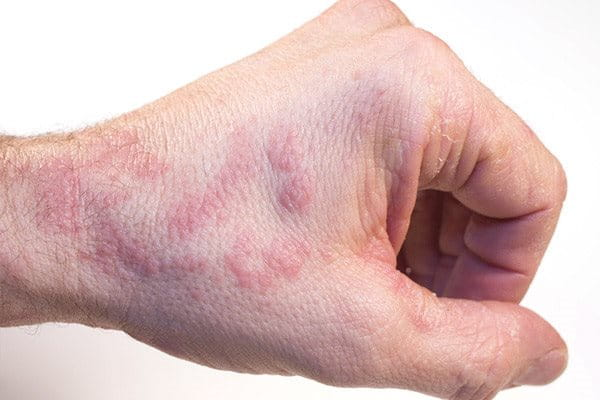 Atopic Dermatitis on the hands  Atopic skin   Eucerin