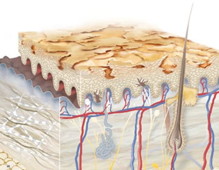 Illustration of dry skin