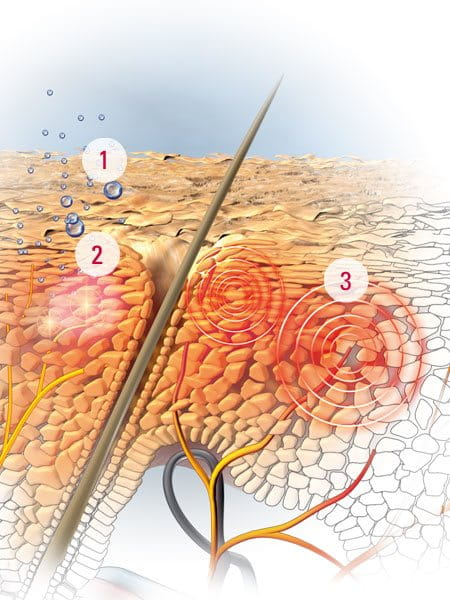 How a dry and itchy scalp develops