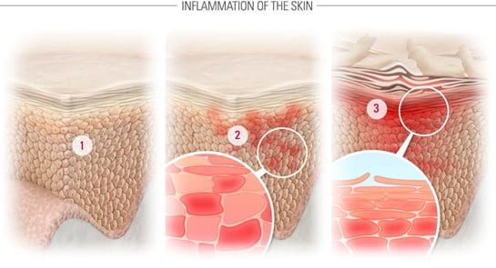 Illustration of healthy skin, microinflammation and inflammation