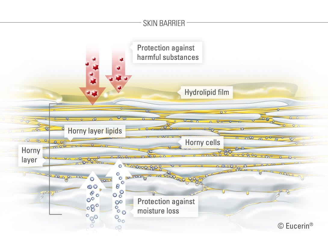 Skin's horny layer of dry sensitive skin