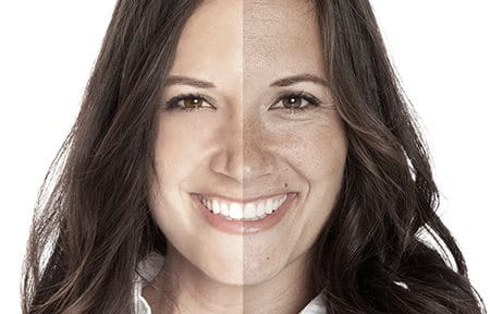 Side-by-side comparison of effects of premature aging.