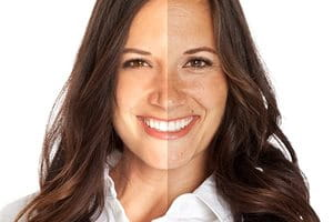 Photoaging: side-by-side comparison of effects of premature aging
