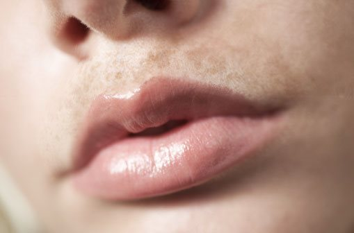 Close up of upper lip with hyperpigmentation