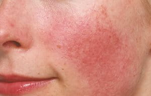 Diffuse redness on a woman's face.