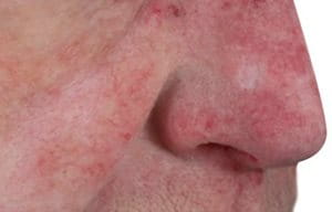 Close-up of man's nose with rhinophyma.