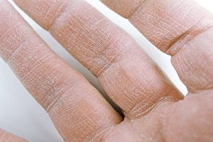 cracked skin on fingers: cracked skin knuckles