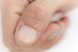 cracked hands and feet causes