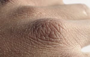 Close-up of the back of a hand with dry skin