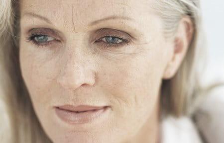 severe dry skin on face