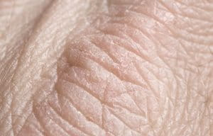 Close-up of dry skin on hands