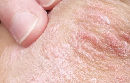 excessive dryness of the skin