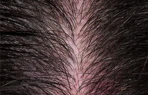 Eucerin: Scalp and hair problems   About sensitive scalp