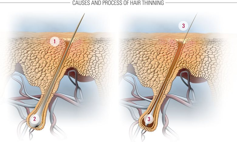 How thinning hair develops