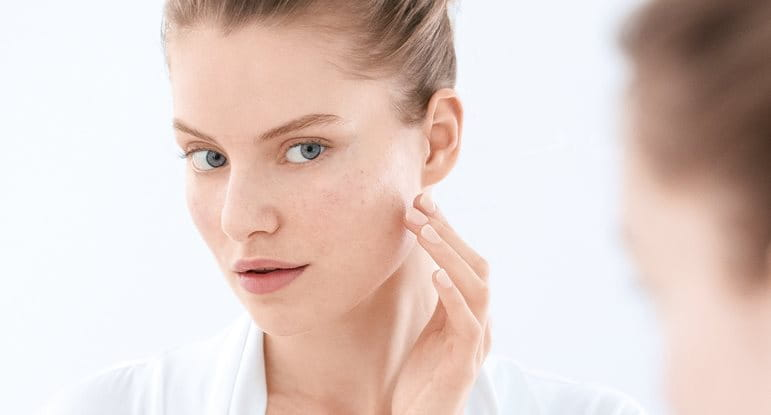 Blemish- and acne- prone skin Causes, triggers, symptoms and advice 18f25ac9562